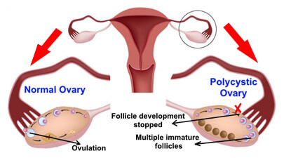 Diseases Of Human Reproductive System